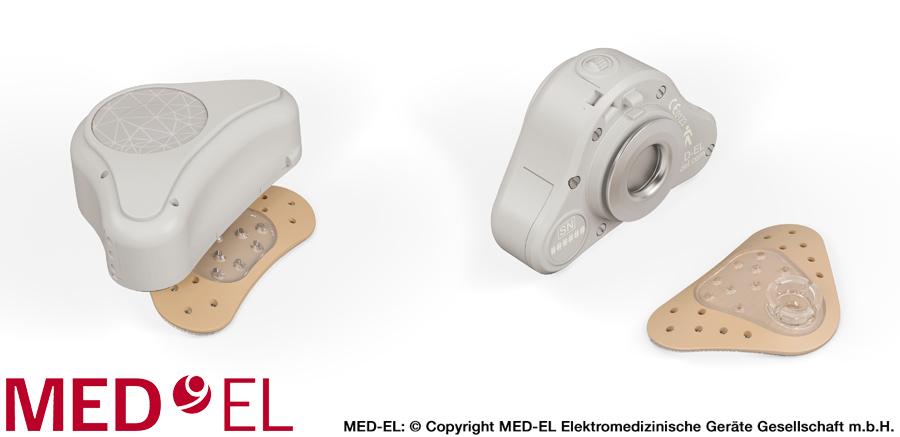 Sistema auditivo de Conducción Ósea ADHEAR